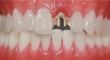 ヒューマンブリッジの前歯例