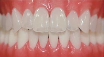 ヒューマンブリッジの前歯例2